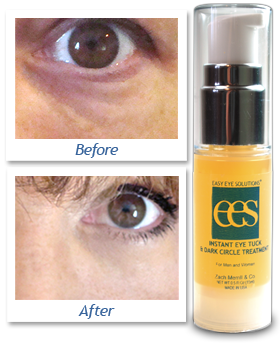 instant eye tuck and dark circle treatment intro