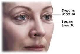 Do you know the difference between eye bags and puffiness ...